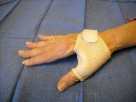 arthritis triggers